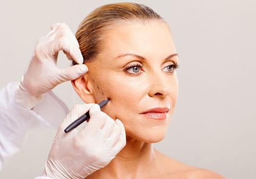 Căng da mặt bằng phương pháp nội soi không đau, không để lại sẹo