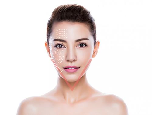 Căng da mặt nội soi là phương pháp mà nhiều chị em lựa chọn<center/><em/>