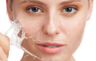 Triệt lông mặt bằng kem lột da mặt, có nên hay không?