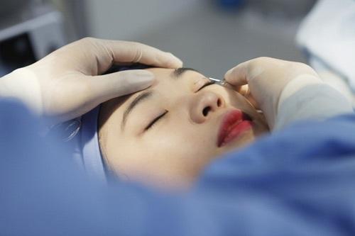 Các phương pháp cắt mắt 2 mí hiện nay