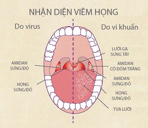 Triệu chứng bệnh viêm họng hạt