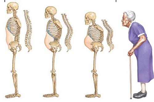Biểu hiện của bệnh loãng xương là gì?