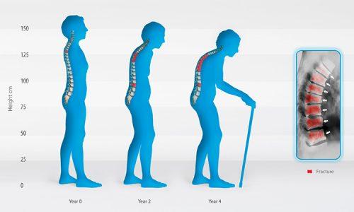 Bệnh loãng xương có xu hướng trẻ hóa người mắc bệnh