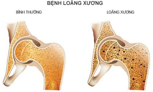 Tìm hiểu thông tin về bệnh loãng xương ở người trẻ tuổi
