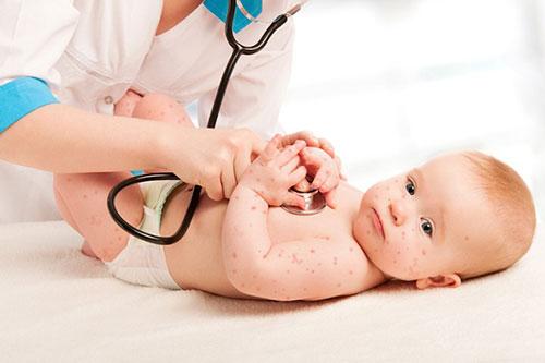 Các biện pháp phòng chống bệnh chân tay miệng