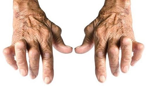 bệnh viên khớp dạng thấp hay gặp chủ yếu ở nữ giới, tuổi trung niên