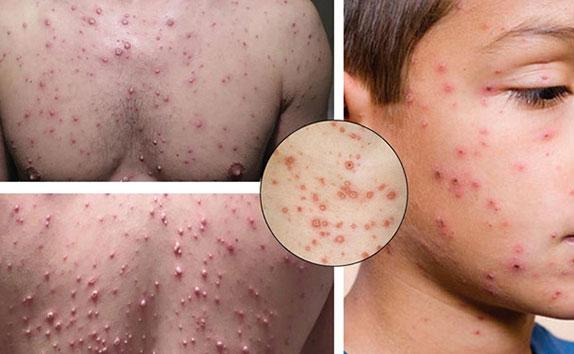 Các biểu hiện của bệnh Thủy đậu  như thế nào?