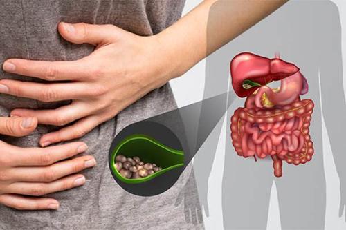 Những phương pháp điều trị bệnh sỏi cholesterol