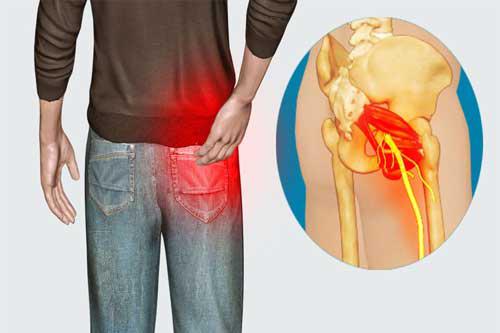 Dược sĩ khuyên bệnh nhân nên đi bộ khi bị đau thần kinh toạ