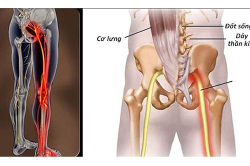 Người đau thần kinh tọa cần khởi động nhẹ nhàng trước khi đi bộ