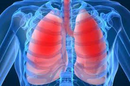 YHCT mách bạn top những bài thuốc Nam điều trị bênh viêm phổi