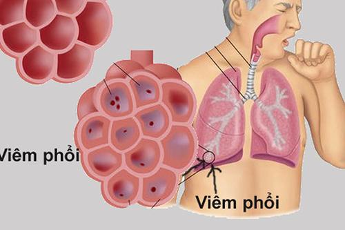 Cách điều trị viêm phổi bằng thuốc nam với cây rẻ quạt hiệu quả