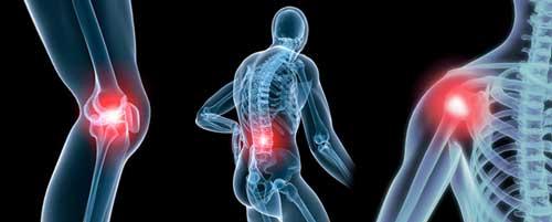 Điều trị xương khớp bằng Glucosamine