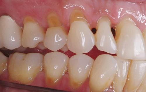 Mòn ổ chân răng, một căn bệnh phổ biến ở nhiều người