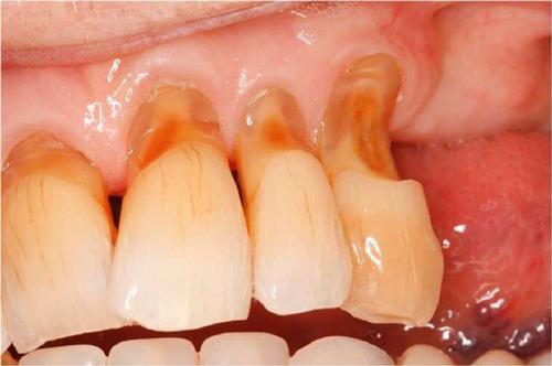 Mòn ổ chân răng để lâu sẽ gây ra hãy răng và một số bệnh lý khác về răng miệng