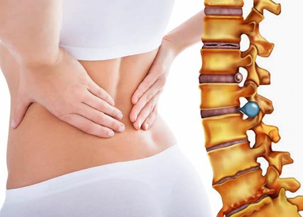 Thoát vị đĩa đệm gây chèn ép lên các dây thần kinh trong cột sống, gây đau, yếu và tê ở cổ, lưng, cánh tay, chân